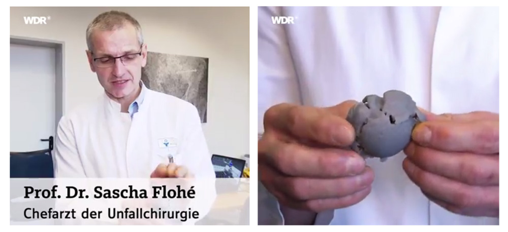 Dr. Sascha Flohé shown 3D printed bone models